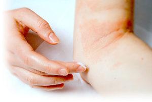 皮膚疾患アトピー