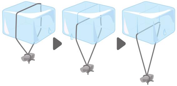 痔瘻治療のシートン法イメージ図