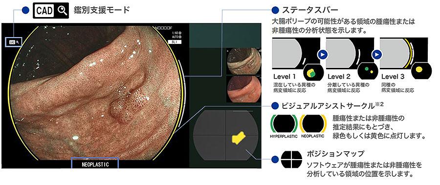 人工知能(AI)大腸内視鏡システム
